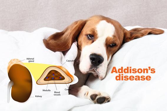 Addisons-disease.jpg